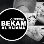 cuppingbekam_thumb